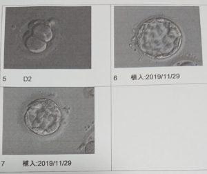 胚盤胞写真